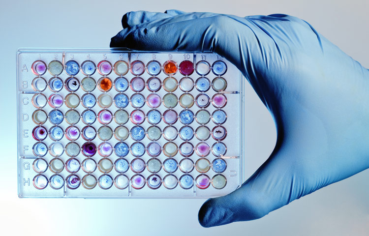 hand with a microplate filled with color samples