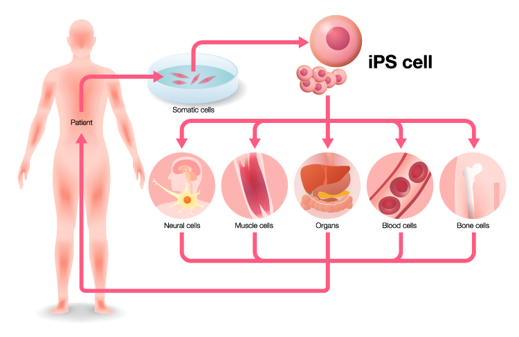 Induced pluripotent stem cells (iPSCs) can transform into any cell in the body