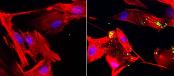 Left: Control image of stroma surrounding pancreatic tumors in normal nutrient environment; Right: Macropinocytosis (green) in stroma around pancreatic tumor exposed to low nutrient environment