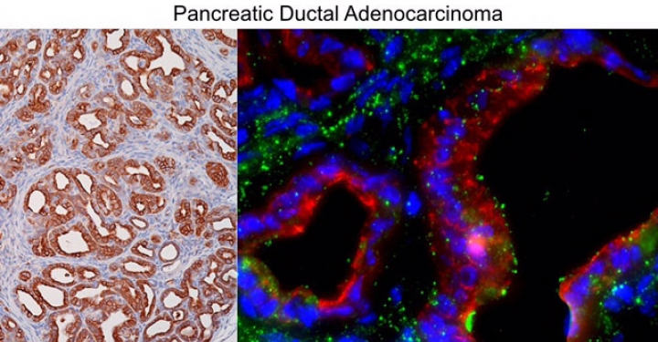 pancreatic ductal adenocarcinoma