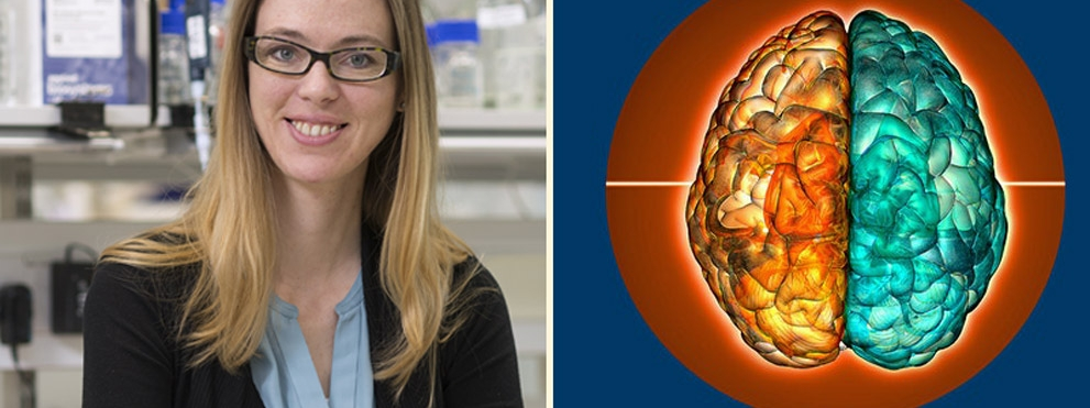 Madeline Lancaster, Ph.D., with illustration of a brain with one orange and one green hemisphere