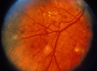 Abnormal blood vessels in patient with diabetic retinopathy