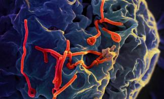 Ebola virus particles budding from a cell