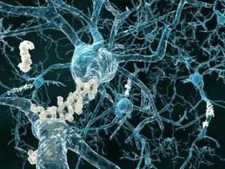 Alzheimer's disease - neurons with amyloid plaques shutterstock_111506315