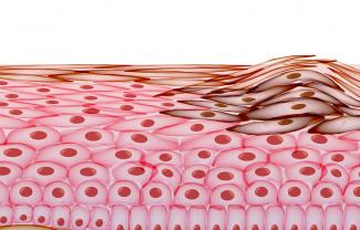 Melanoma in Layers of the Human skin, Cancer