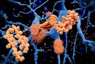 Beta amyloid protein-Alzheimers disease